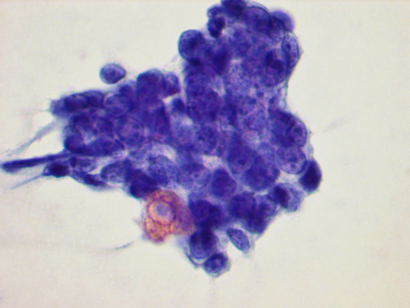 Branchial Cleft Cyst Cytology