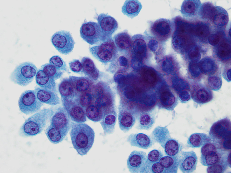 Society Of Cytopathology Case Of The Month September 2012